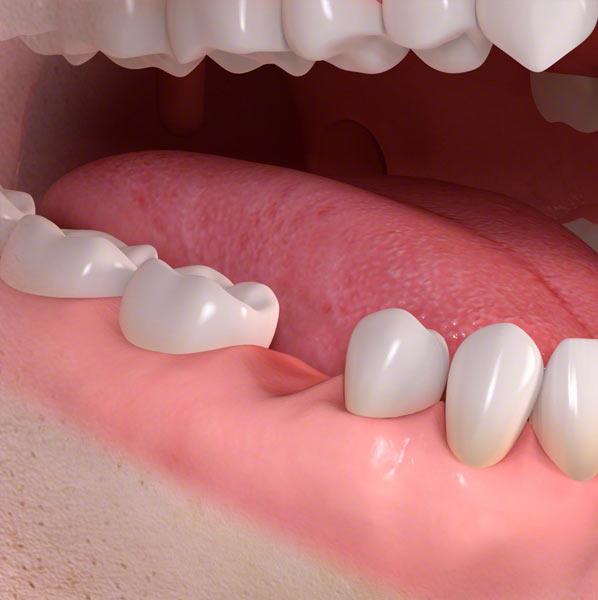 teeth dental implants